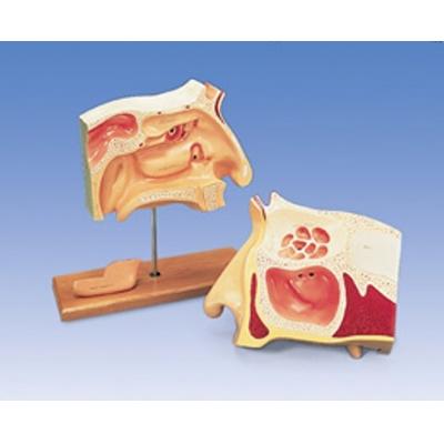 Modelo simulador de endoscopia nasal