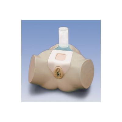 Simulador de Cateterização para o Estudo Clínico – Cateterização Transuretral e Suprapubiana na Mulher