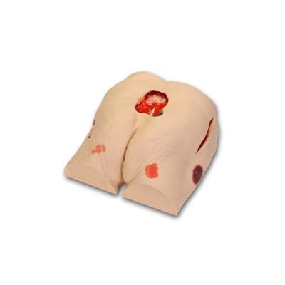 Simulador para o Tratamento da Úlcera do Decúbito