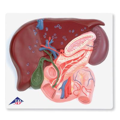 Modelo de Fígado com Vesícula Biliar, Pâncreas e Duodeno