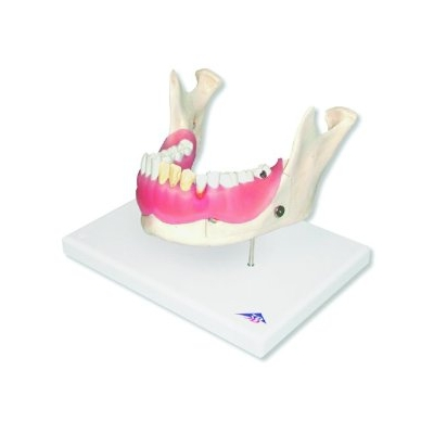 Doença Dental – Ampliado 2 Vezes – 21 Peças