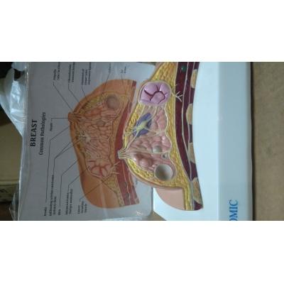 Modelo de Mama com Patologias
