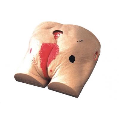 Modelo para Cuidados Ulcera de Decubito
