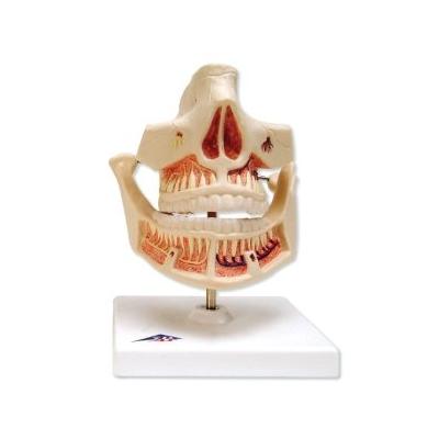 Dentição de Leite