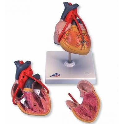 Coração Clássico com Bypass – 2 Peças