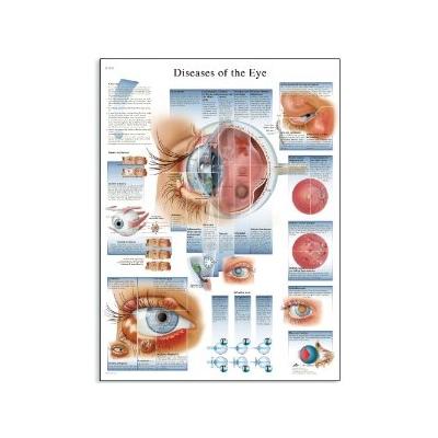 Doenças do Olho